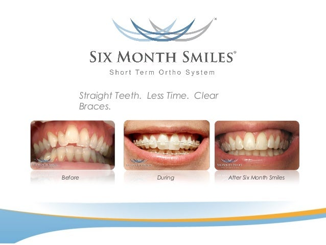 Straight Teeth. Less Time. Clear Braces. After Six Month SmilesBefore During