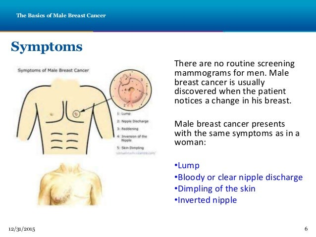 male nipple discharge steroids