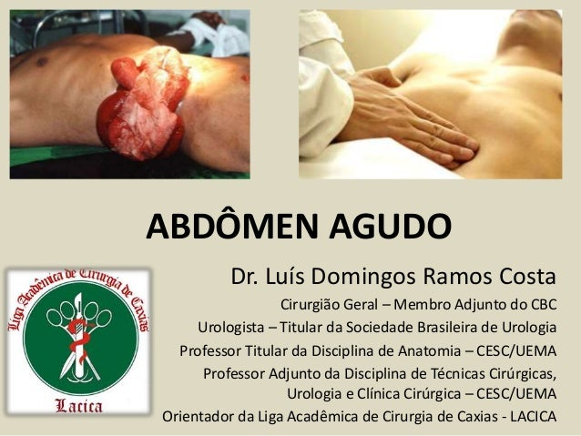 ABDÔMEN AGUDO Dr. Luís Domingos Ramos Costa Cirurgião Geral – Membro Adjunto do CBC Urologista – Titular da Sociedade Bras...