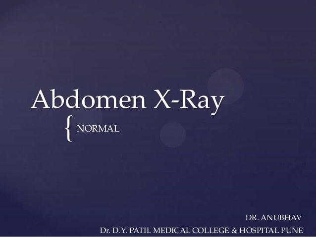Abdomen x Ray Anatomy { Abdomen X-ray Normal dr