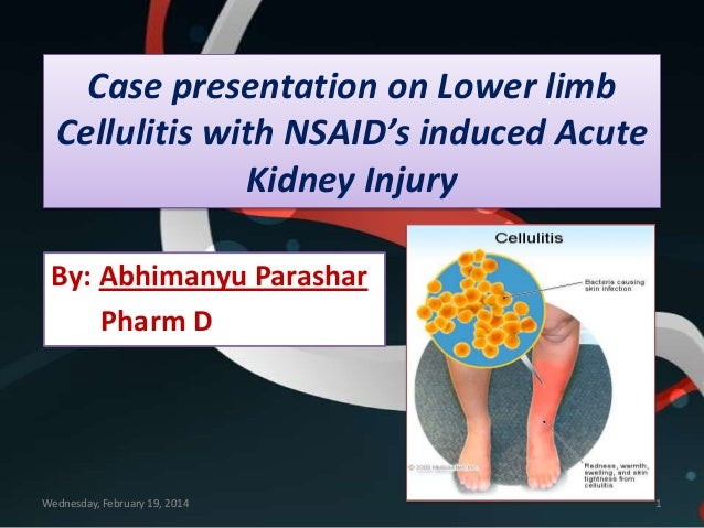 Case presentation on Lower limb Cellulitis with NSAID's induced Acute Kidney Injury By: Abhimanyu Parashar Pharm D  Wednes...