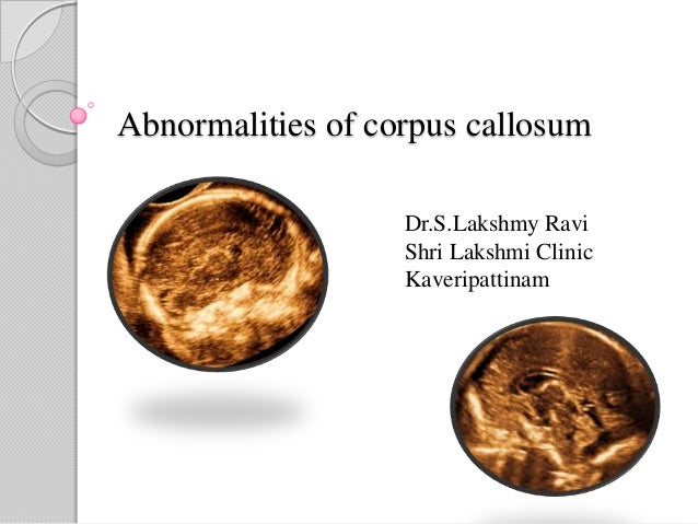 Abnormalities of Corpus Callosum