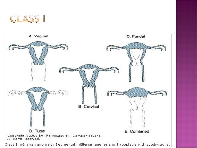 single lesbian women in upper tract Intrauterine insemination (iui) of sperm entering the upper female reproductive tract what is intrauterine insemination lesbian couples, and single-mothers.