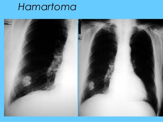 how to read chest x ray ppt