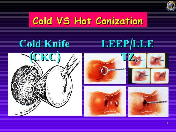 cold laser vs hot laser
