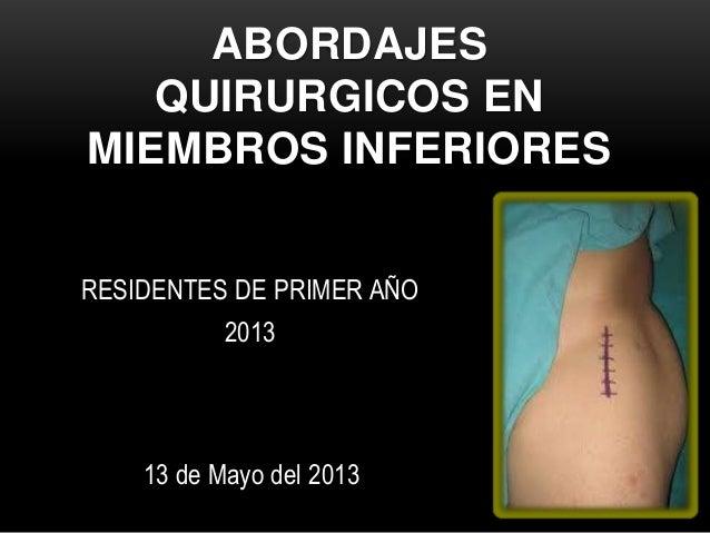 ABORDAJESQUIRURGICOS ENMIEMBROS INFERIORESRESIDENTES DE PRIMER AÑO201313 de Mayo del 2013