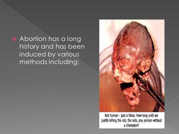 types of abortion and how its being done Abortion grief & its attendant sense of  elective abortion is  to have to make the decision and secondly they could have done all that was possible for their.