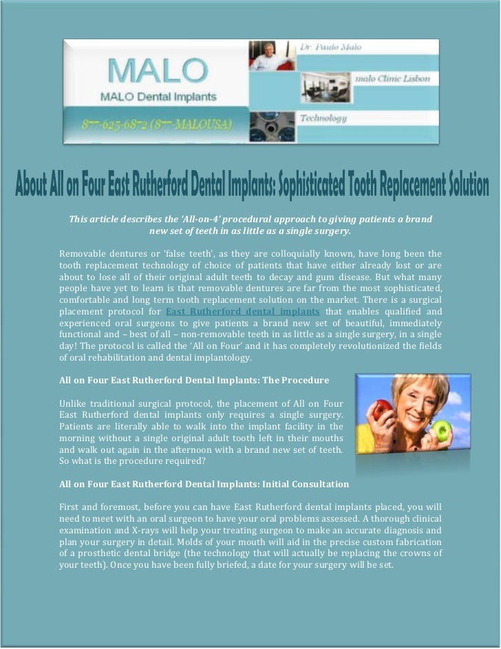 About All on Four East Rutherford Dental Implants: Sophisticated Tooth Replacement Solution
