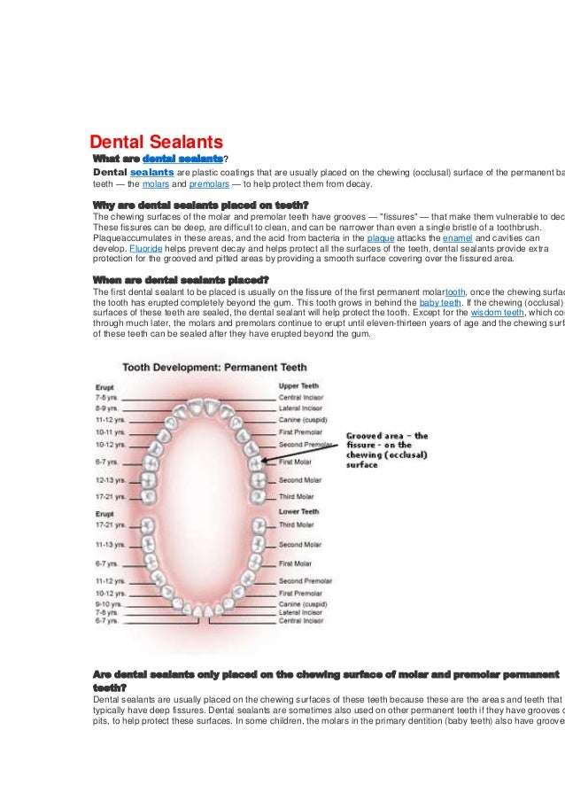 Dental Sealants  What are dental sealants? Dental sealants are plastic coatings that are usually placed on the chewing (oc...