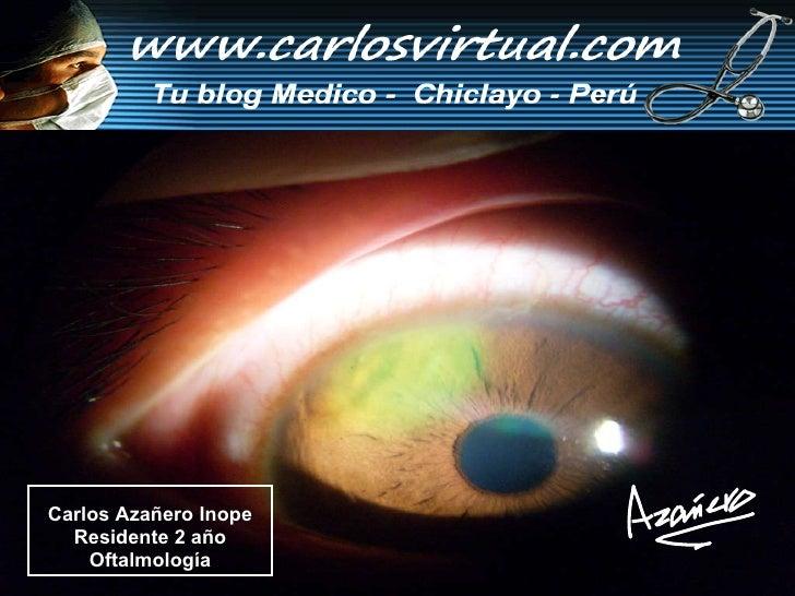 Carlos Azañero Inope Residente 2 año Oftalmología