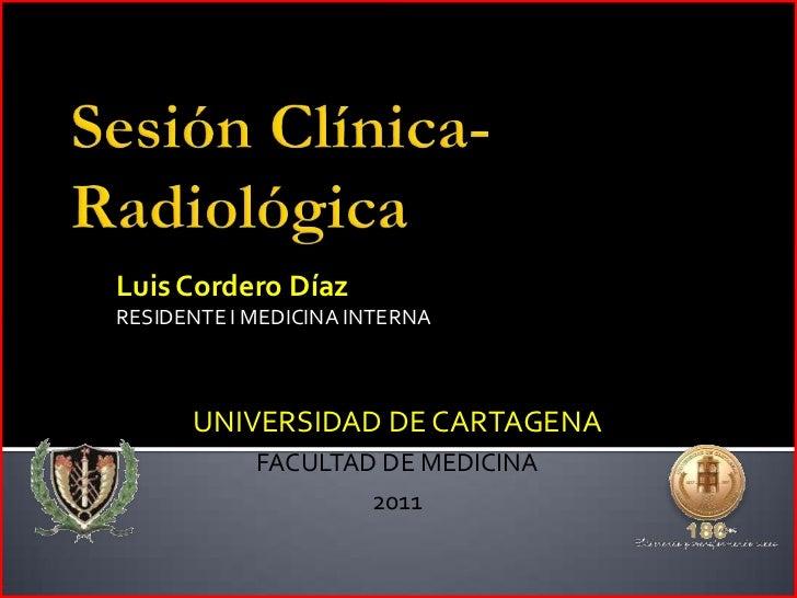 Sesión Clínica- Radiológica<br />Luis Cordero Díaz<br />RESIDENTE I MEDICINA INTERNA<br />UNIVERSIDAD DE CARTAGENA<br />FA...