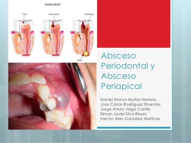 Absceso Periodontal y Absceso Periapical Daniel Alonso Muñoz Herrera Jose Carlos Rodriguez Sifuentes Jorge Arturo Vega Car...