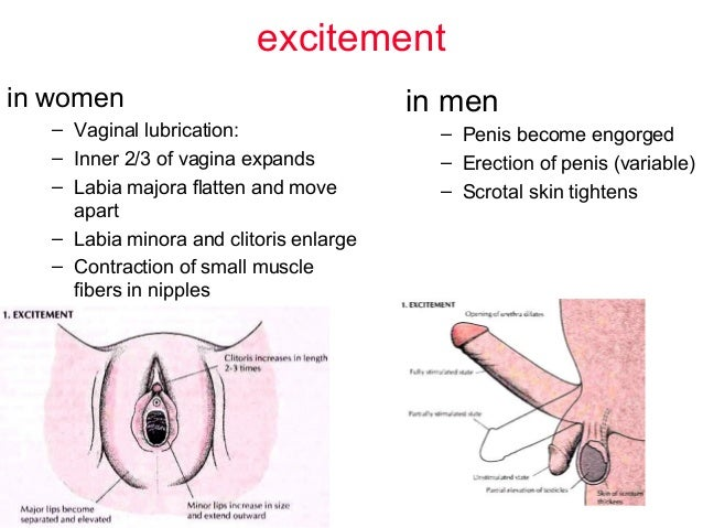 Sexually excited vagina pictures porn sorry, that
