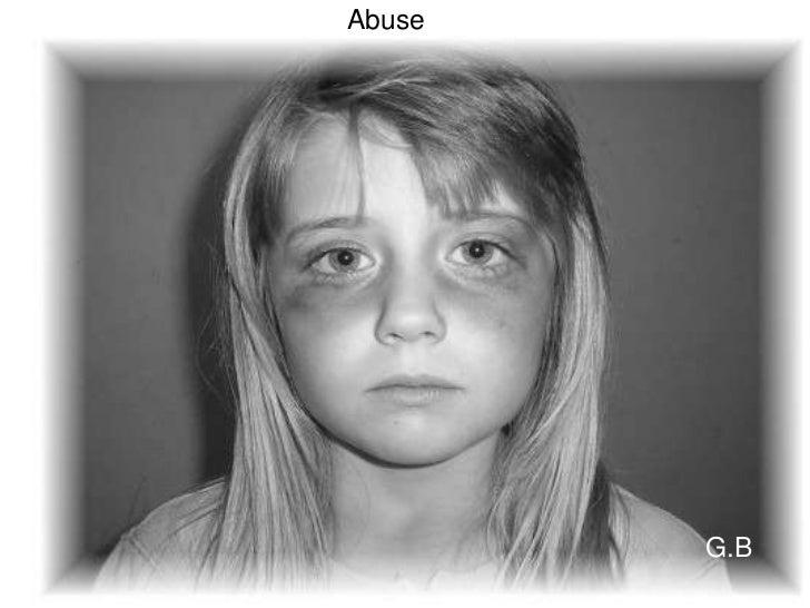 Abuse[1]