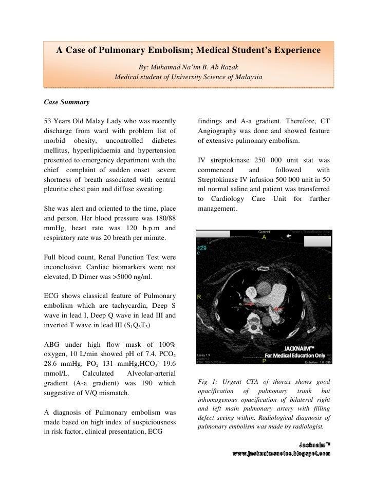 case study pulmonary embolism