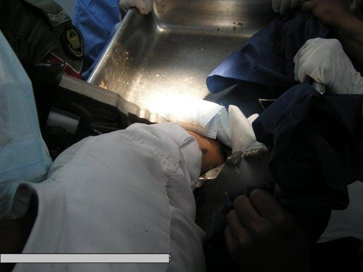 Accidente con atrapamiento de manos