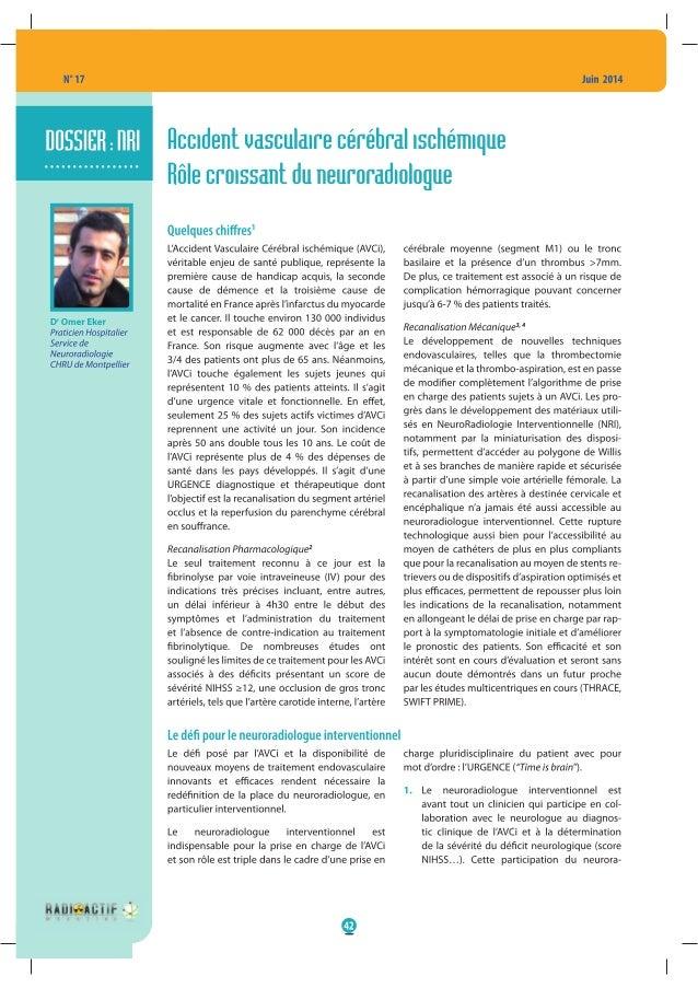 Accident vasculaire cérébral ischémique ; rôle croissant du neuroradiologue.