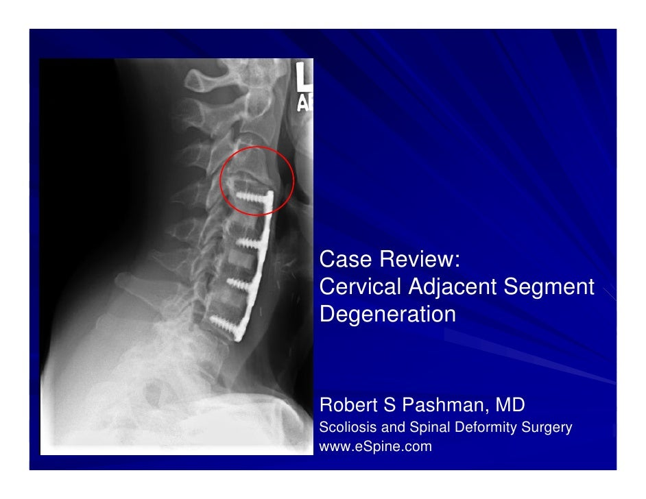 Case Review:Cervical Adjacent SegmentDegenerationRobert S Pashman, MDScoliosis and Spinal Deformity Surgerywww.eSpine.com