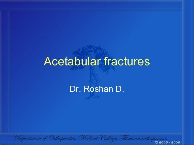 Acetabular fractures    Dr. Roshan D.