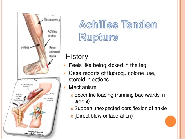 leg injections for steroids