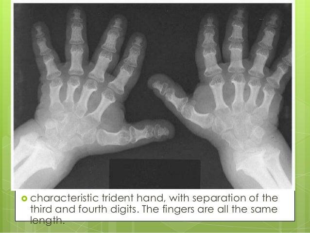 Trident hand in achondroplasia.
