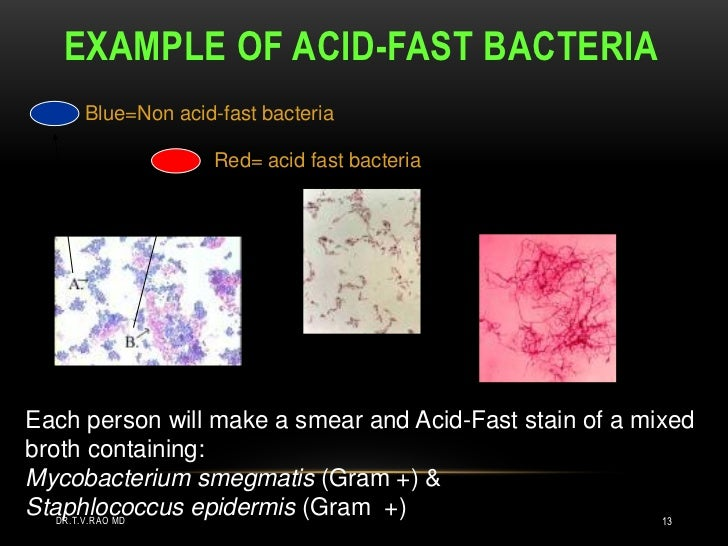 acid fast stain Acid-fast staining acid-fast stain is a differential stain more so, it is a physical property of certain bacteria, particularly a bacteria's resistance to decolorization by certain acids during staining procedures.