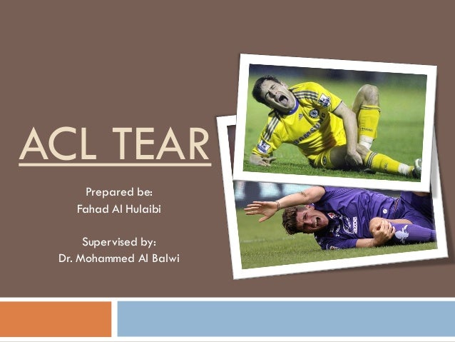 ACL TEAR Prepared be: Fahad Al Hulaibi Supervised by: Dr. Mohammed Al Balwi