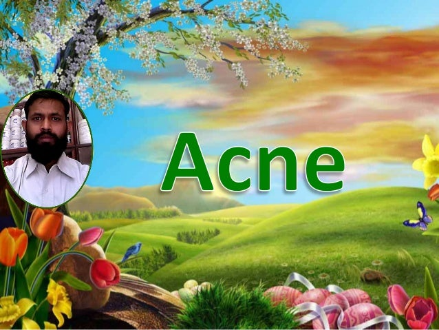 Acne is a skin disease caused by changes inthe pilo-sebaceous units of a person. Itusually strikes at the age of adolescen...