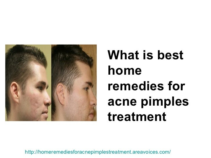 What is best home remedies for acne pimples treatment http:// homeremediesforacnepimplestreatment.areavoices.com /