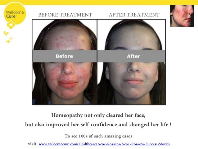 acne 1177