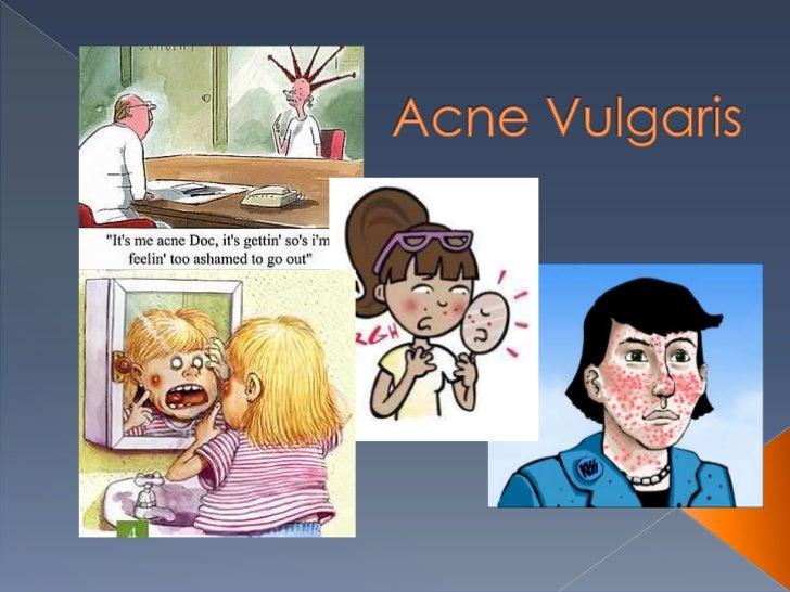 Acne Vulgaris<br />