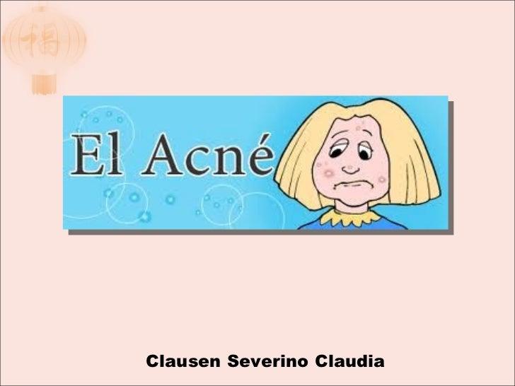 Clausen Severino Claudia