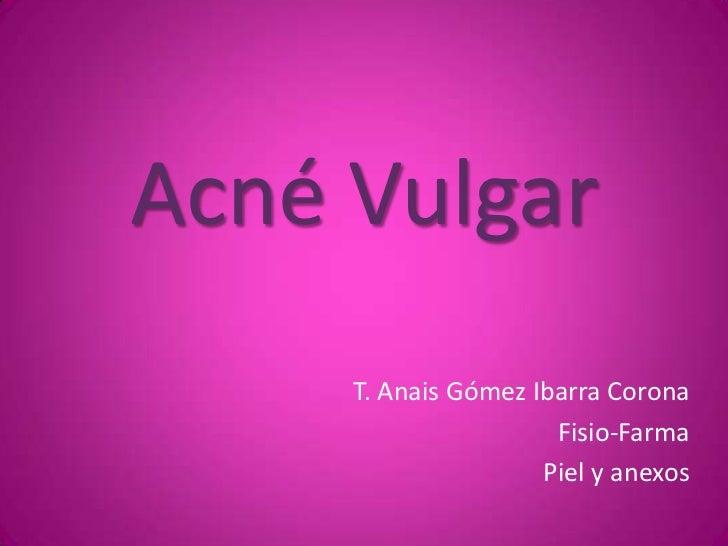 Acné Vulgar<br />T. Anais Gómez Ibarra Corona<br />Fisio-Farma<br />Piel y anexos<br />