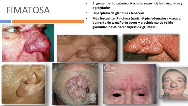 Los médicos los dermatólogos sobre el tratamiento del acné