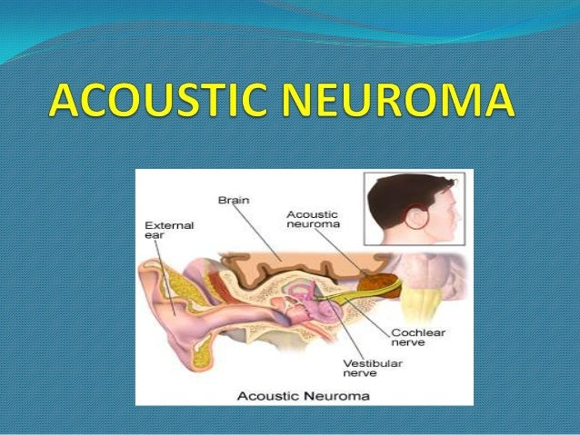 VESTIBULAR SCHWANNOMA/ ACOUSTIC NEUROMAIt's the most common intracranial schwannoma constituting 80% of all cerebelloponti...