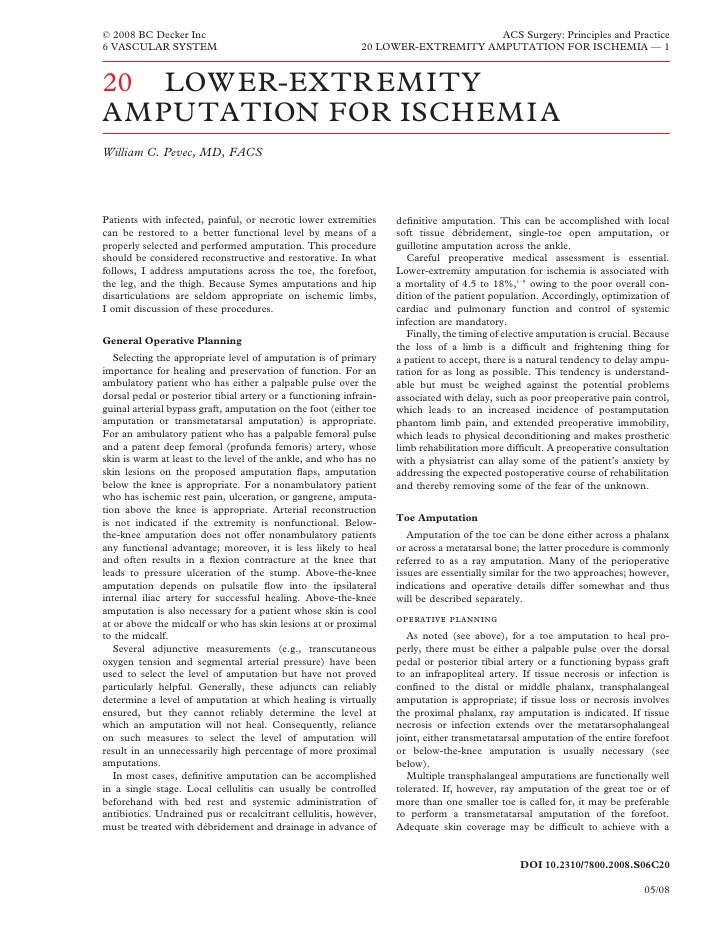 Acs0620 Lower Extremity Amputation For Ischemia