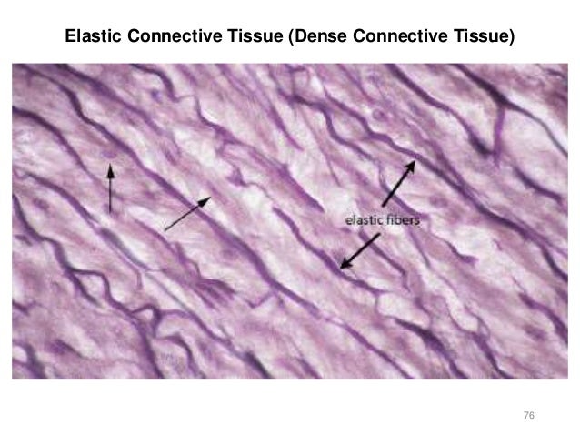 Elastic Tissue Labeled Activity 2 - Histology...