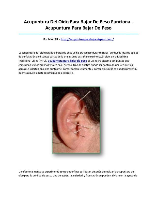 Acupuntura Del Oído Para Bajar De Peso Funciona -Acupuntura Para Bajar De Peso____________________________________________...