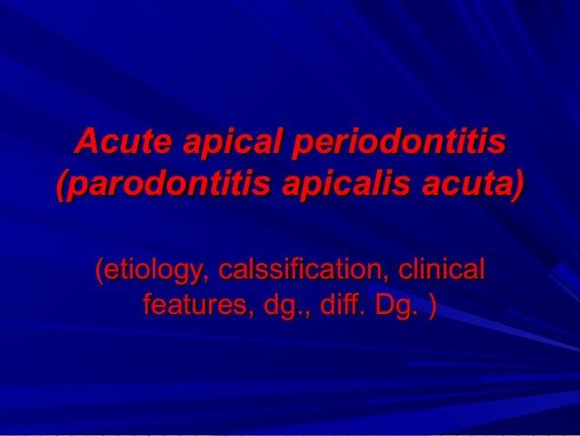 Acute apical periodontitisAcute apical periodontitis (parodontitis apicalis acuta)(parodontitis apicalis acuta) (etiology,...