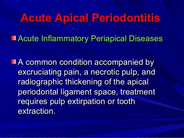 Periapical periodontitis - Wikipedia