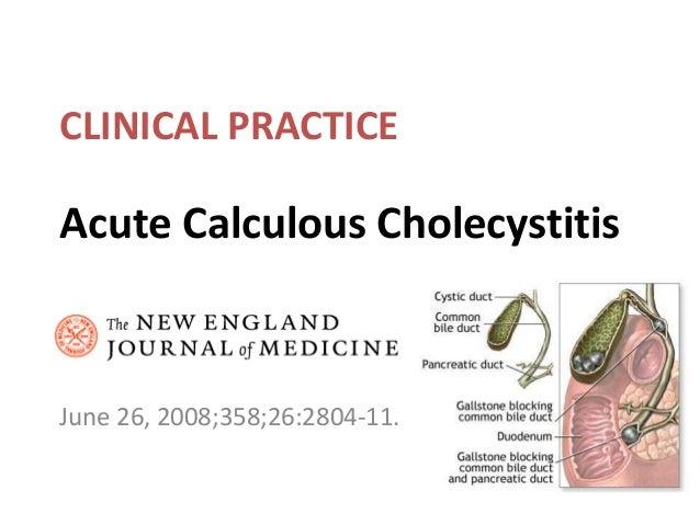 Acute Calculous Cholecystitis June 26, 2008;358;26:2804-11. CLINICAL PRACTICE