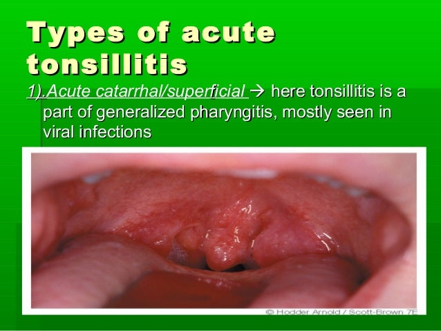 Causes of throat infections in adults