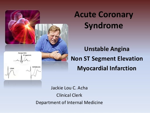 Acute Coronary Syndrome Unstable Angina Non ST Segment Elevation Myocardial Infarction Jackie Lou C. Acha Clinical Clerk D...