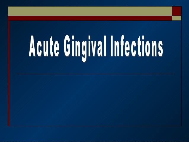 Necrotizing Ulcerative Gingivitis    (NUG)Trench Mouth.Vincent Infection.Acute Ulceromenbranous Gingivitis.Fusospiroch...