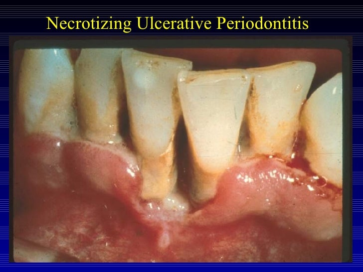 Necrotizing Periodontal Diseases - Foundations of ...