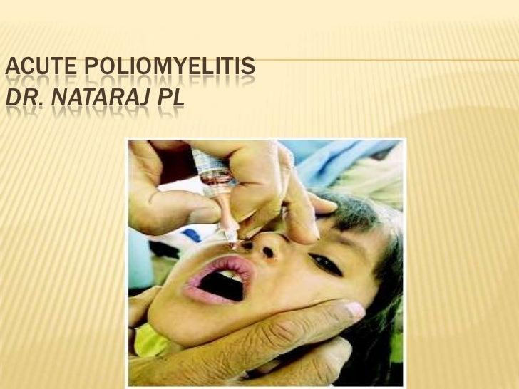 Acute poliomyelitis
