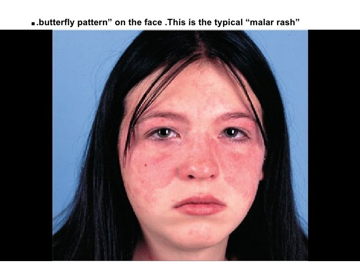 "..butterfly pattern"" on the face .This is the typical ""malar rash"""
