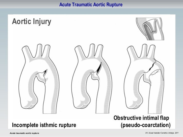 acute-traumatic-aortic-rupture-5-638.jpg