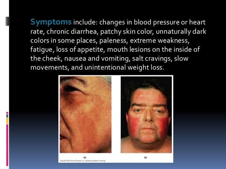 Addison Disease Skin
