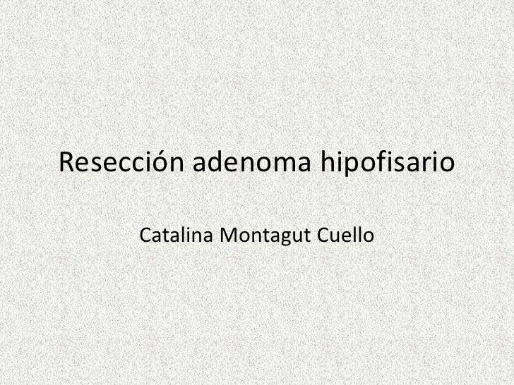 reseccion adenoma hipofisario